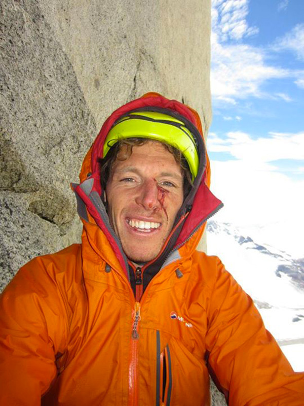 D'Artagnan (7a,C1, M6), Los tres Mosqueteros, Cerro Domo Blanco, Patagonia:David Gladwin smiling after losing a battle with a falling rock, David Gladwin
