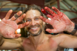 David Kaszlikowski after a machete accident. The team cut a new access trail through the jungle.