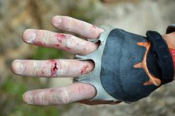 Dopo le fessure ci si lecca le ferite.