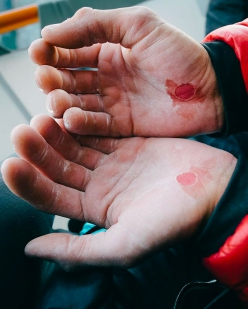 The hands of Jacopo Larcher after an attempt on the Stemming Corner Pitch on the Pre-Muir Wall up El Capitan in Yosemite