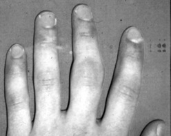 Finger injuries associated with over training.